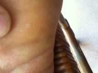 Plantar Warts: Pain-Free and Low-Cost Home Treatment, 40